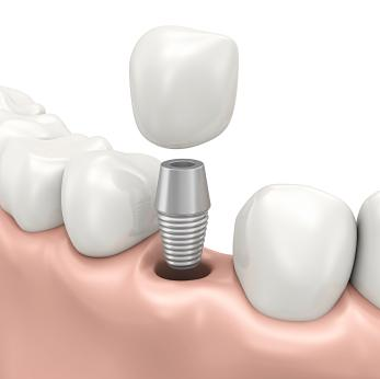 Dental Implant | Fredericksburg VA Dentist