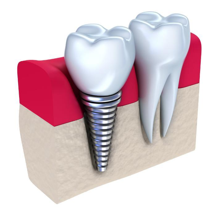Diagram of dental implant in gums at 22401 dentist office