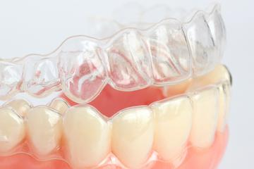 Invisalign for Adults in Fredericksburg